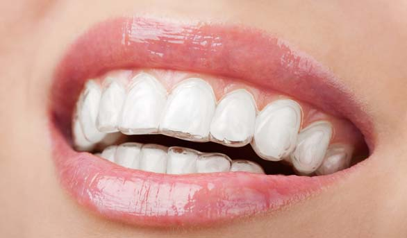 Short Term Orthodontics : Is it for me?