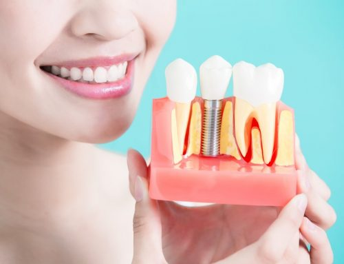 All You Need to Know about Dental Implants