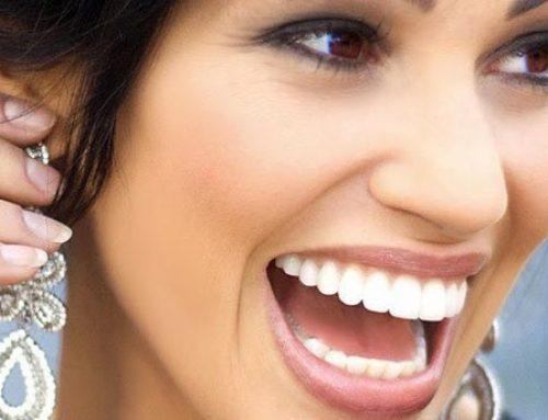 Dental Tips for a Celebrity Smile