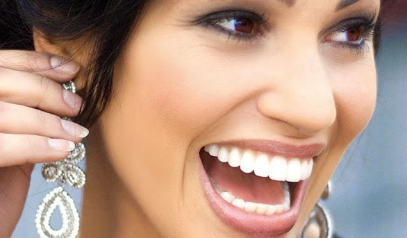 Dental Tips for a Celebrity Smile