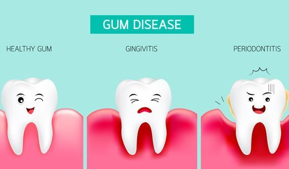 Periodontal (Gum) Disease