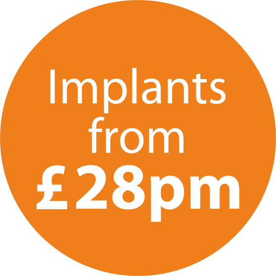 Icon for Dental Implants prices from £28 per month.