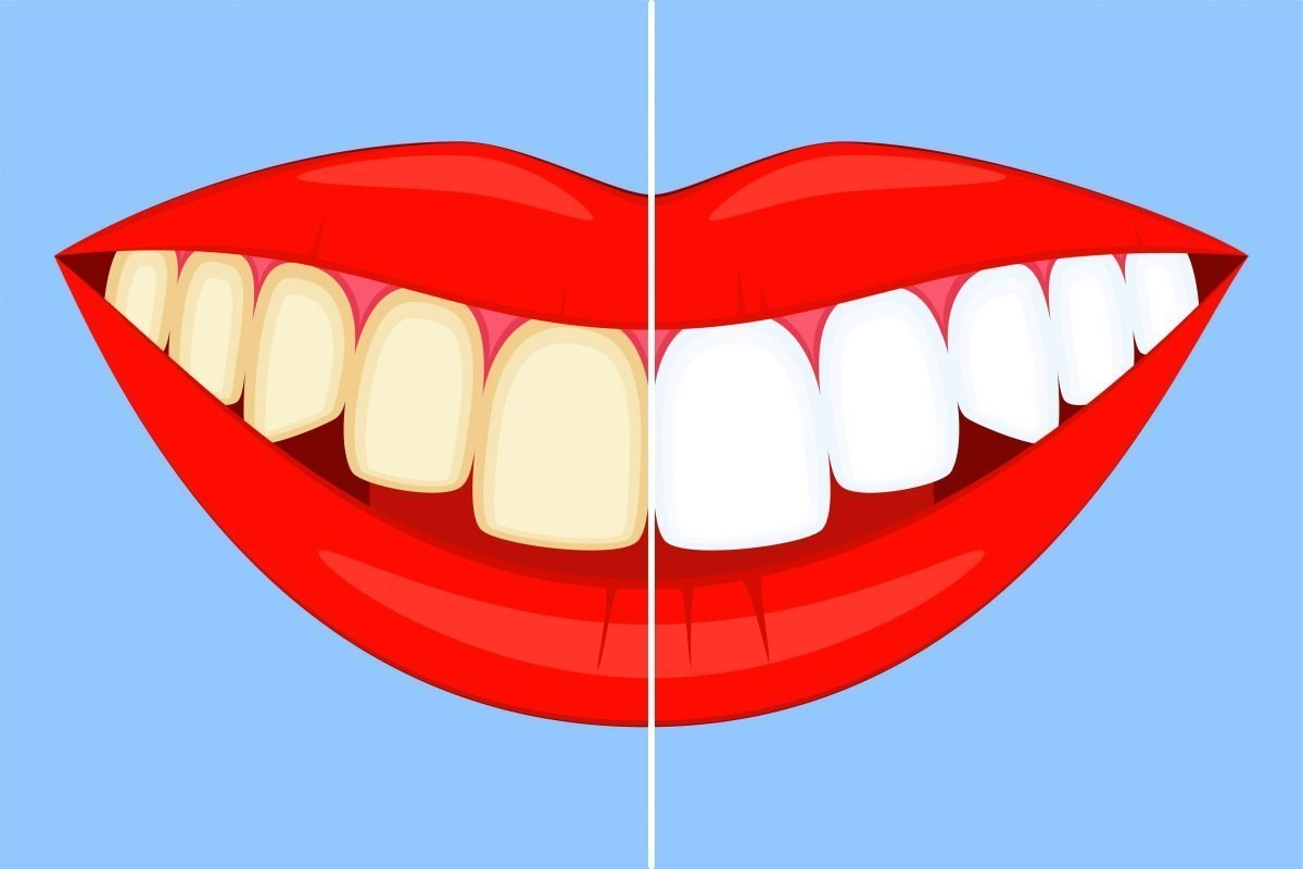 Vector drawing of a smile and lips showing half of the teeth white and the other half discoloured