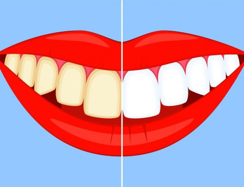 5 Common Causes of Discoloured Teeth (and How Teeth Whitening Can Help)