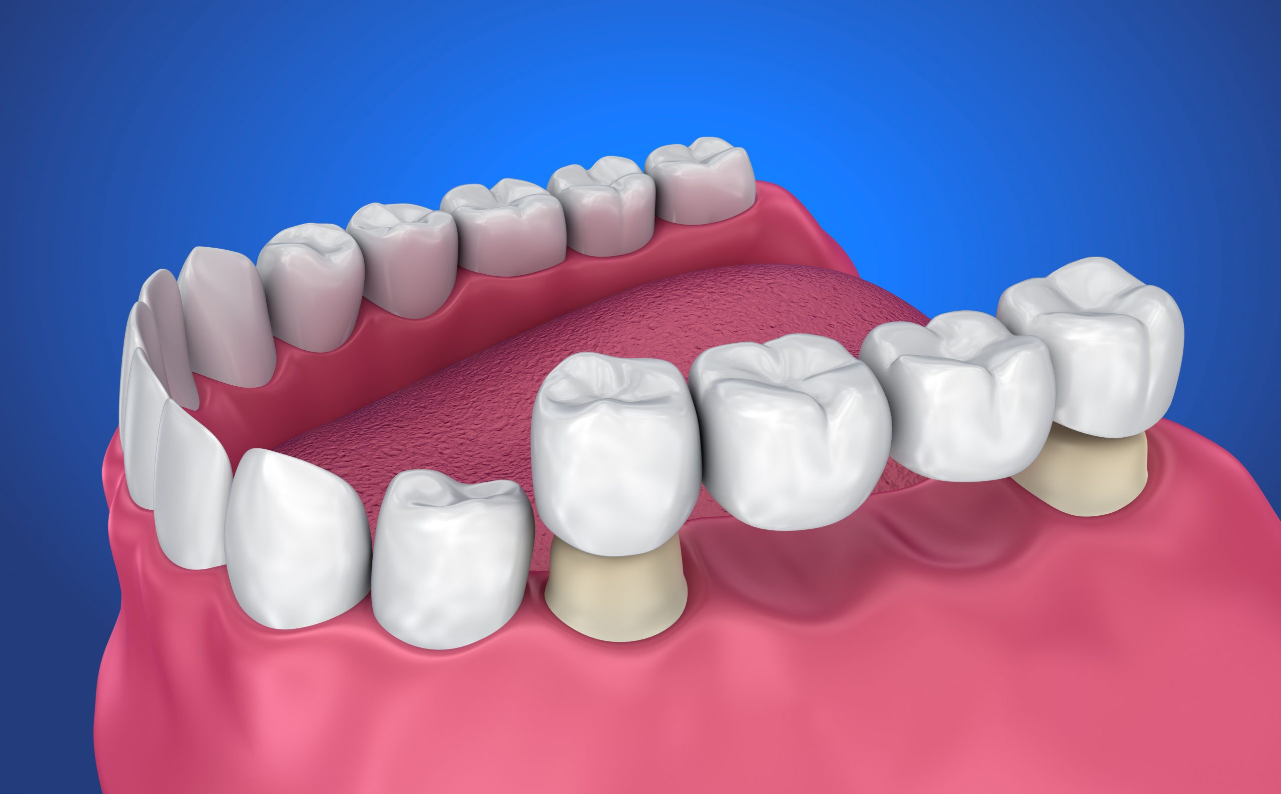 Dental Bridges Pros and Cons Is a Tooth Bridge Right for You